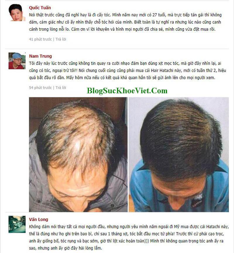 Chia sẻ của khách hàng sau khi sử dụng thuốc mọc tóc