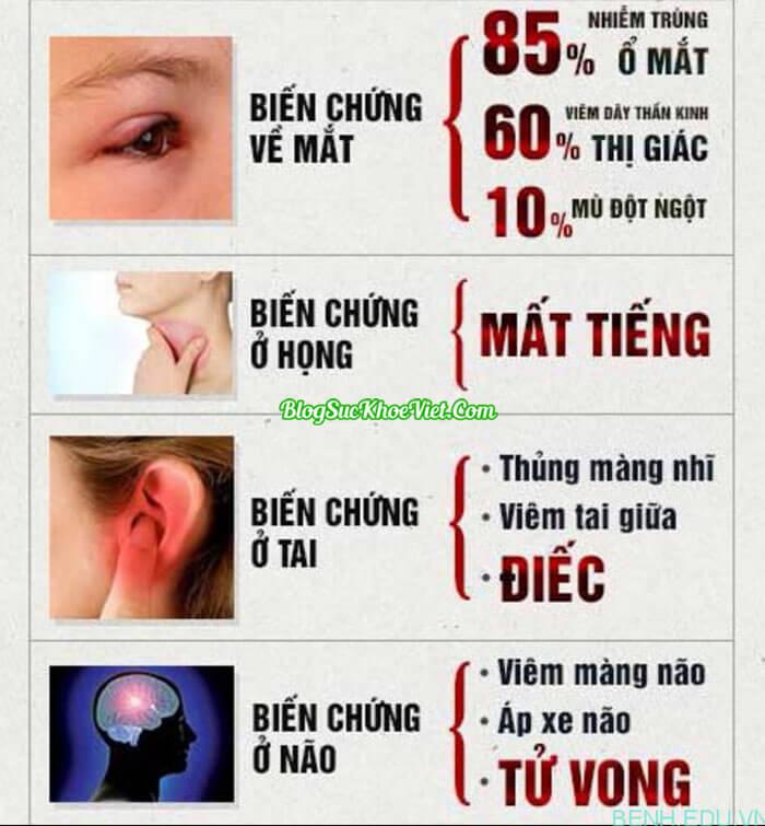 Bệnh Viêm Xoang